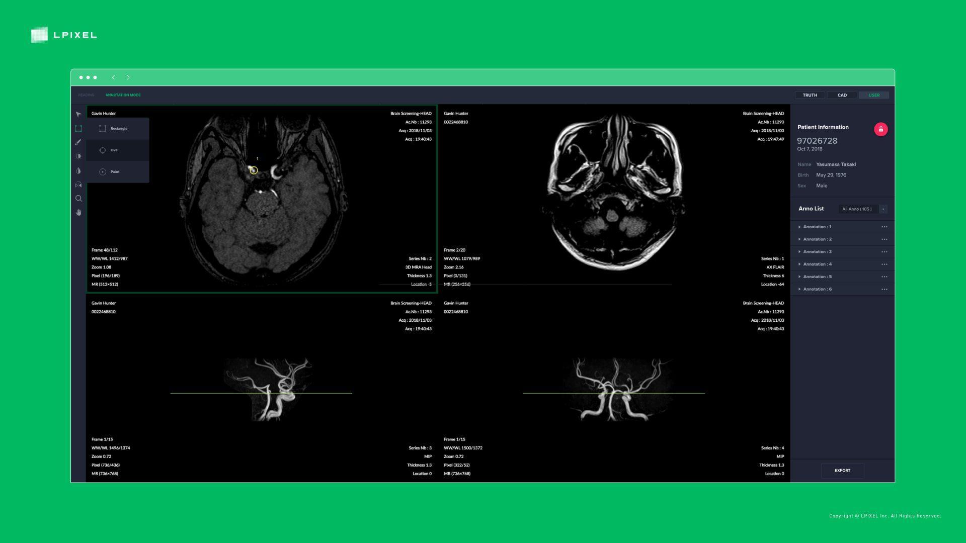 医用画像解析ソフトウェア EIRL aneurysm (エイル アニュリズム)を ...